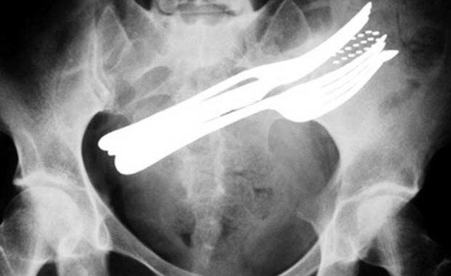 Dünyanın en korkunç röntgen çekimleri