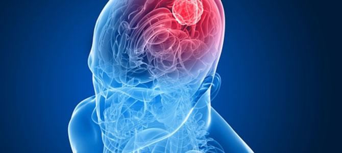 Beyin ölümü konusunda bildiklerimiz ne kadar doğru?