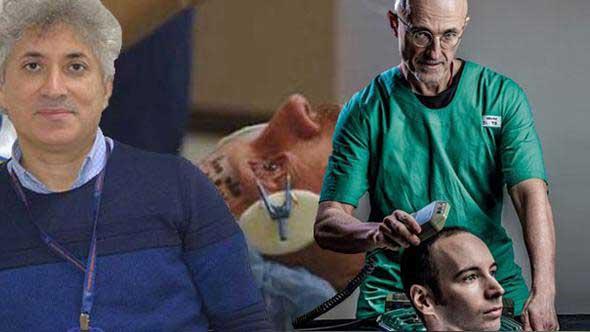 Prof. Dr. Özkan'dan 'kafa nakli' yorumu: Soru işareti sinir iyileşmesiyle ilgili!