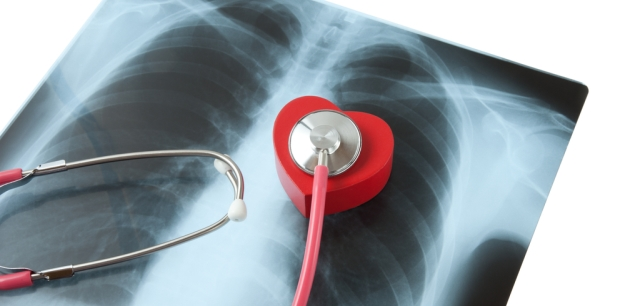Pulmoner Emboli Nedir?