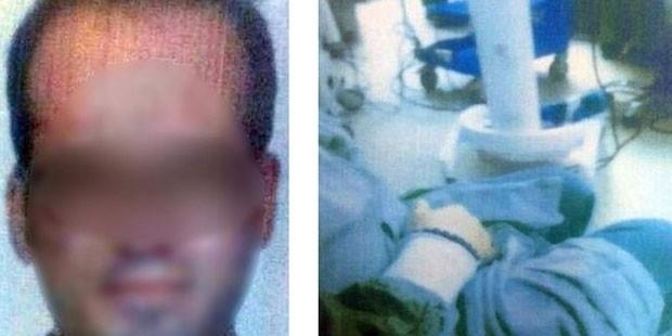 Uyutulan hastanın başında mastürbasyon yapan Anestezi Teknisyeni tutuklandı