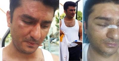 112 Acil Ekibi Sorumlusu Doktor darp edildi, kafa travması geçirdi