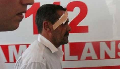 Elazığ'da ambulans şoförü darbedildi