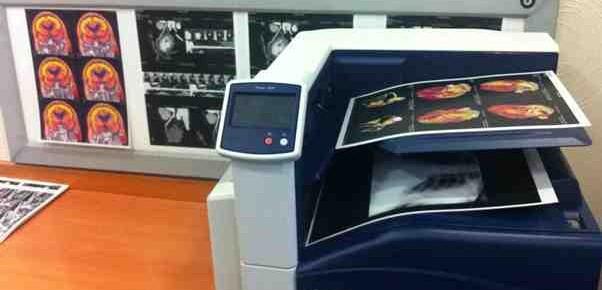 Röntgen filmleri artık kağıda basılacak!