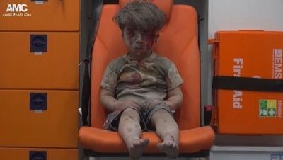 Dünya bu çocuğu konuşuyor bombalı saldırı...