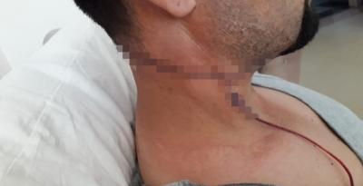 Sağlık memuru mesai arkadaşını falçatayla yaraladı