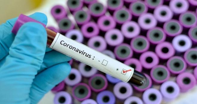 Göğüs Hastalıkları Uzmanı da Koronavirüs'e Yakalandı