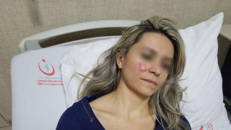 Hastane Çıkışı Kadın Doktora Saldırı