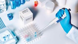PCR Testi İçin Bakanlık 81 İl Valiliğine Yazı Gönderdi